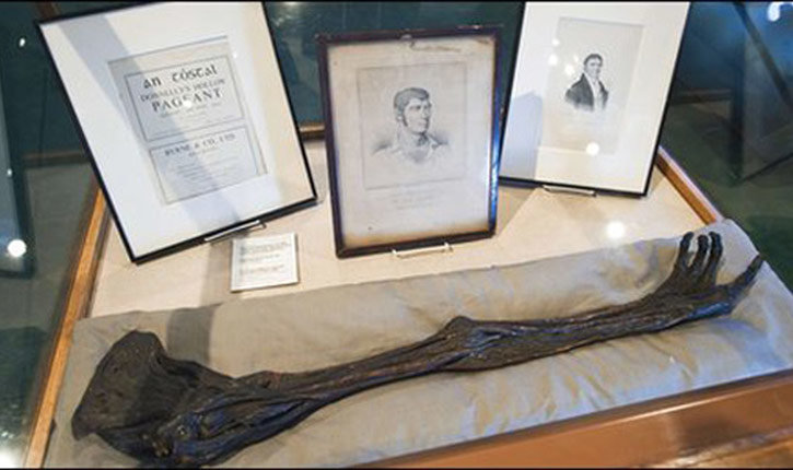 The arm of Dan Donnelly on display.