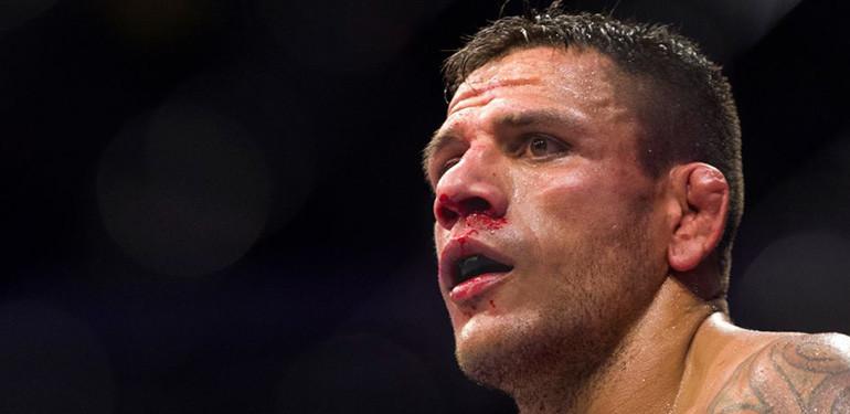 Rafael Dos Anjos UFC lightweight. champion.