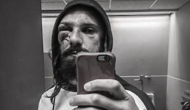 Josh Samman who recently died mysteriously.