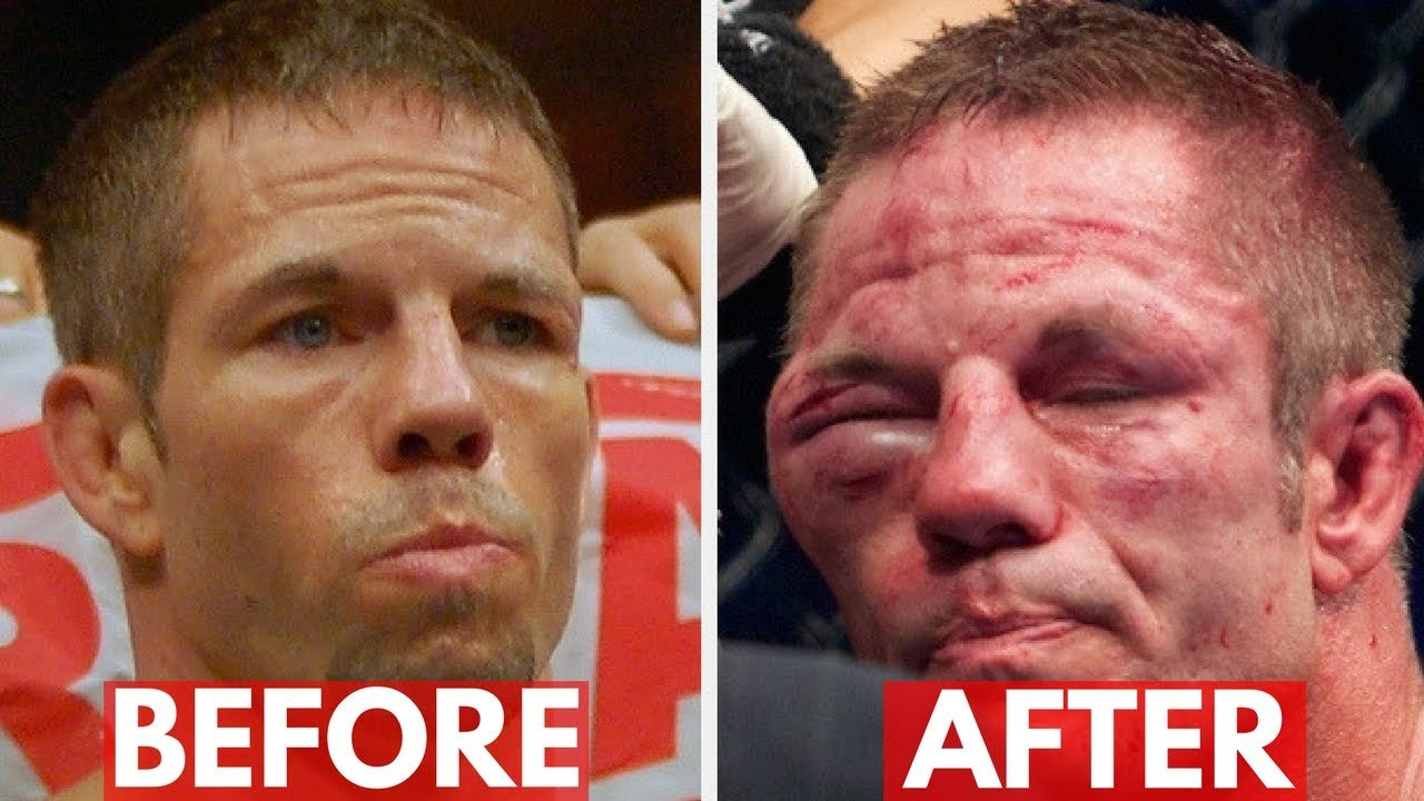 UFC fighters post fight videos of injuries.